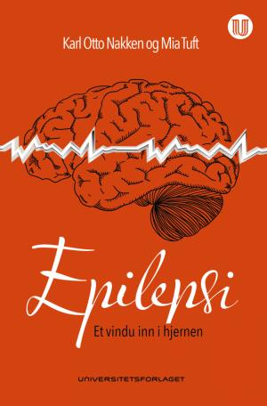 Epilepsi omslag